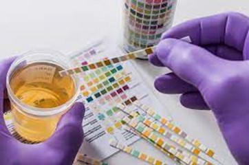 5-Panel Drug Test